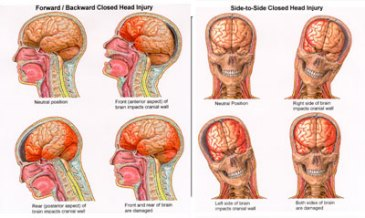 concusionChicago_TBI_Lawyer